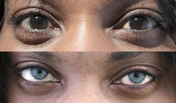 Глазные импланты