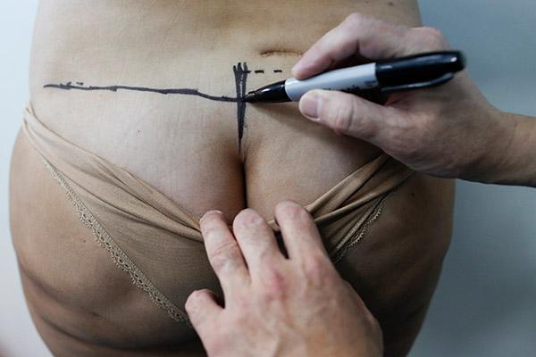 Разметка перед операцией